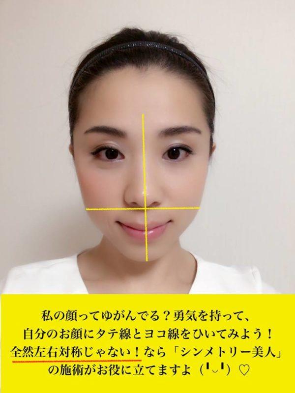 お顔のゆがみの測り方