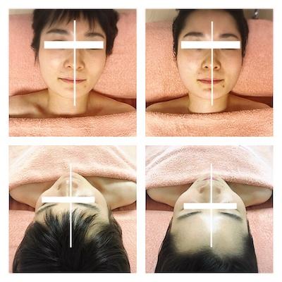 首のねじれがお顔のゆがみを加速させる