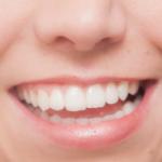 なぜ、あなたのお顔のゆがみをシンメトリー美人®メソッドでイマ解消すべきか?