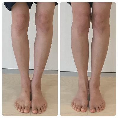 シンメトリー美人ならO脚がほんの数分で改善します!