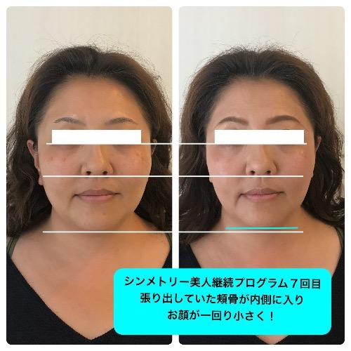 福井県からシンメトリー美人継続プログラムに通うお客様の変化