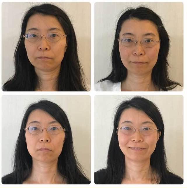 輪郭が左右対称に1ヶ月で整った看護師さんのビフォーアフターをご紹介。