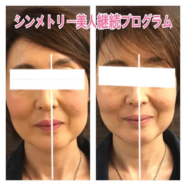 美容院でいつも頭の向きを直される人の共通点