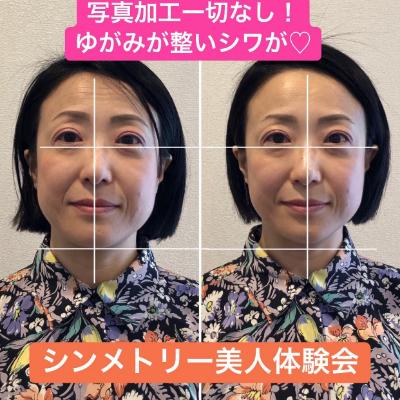 おでこのシワがたった1回で薄くなった〜〜!!!