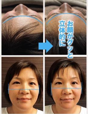 【before/after】日本人の平たい顔から一気に立体感アップ!外国人のようにパーツが中央に揃った事例をご紹介!