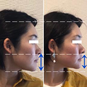 【before/after】二児の母。1回で鼻下の間延びが縮まり、角ばった印象からつるんとした小顔に変化!