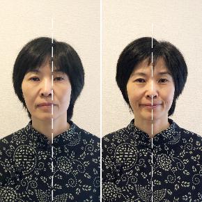 【嘘でしょ!】体の筋膜さえ整えれば、あなたの顔は激変します!