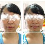 【写真&感想】オンラインセルフケア講座で顔が小さくなって感動です〜!